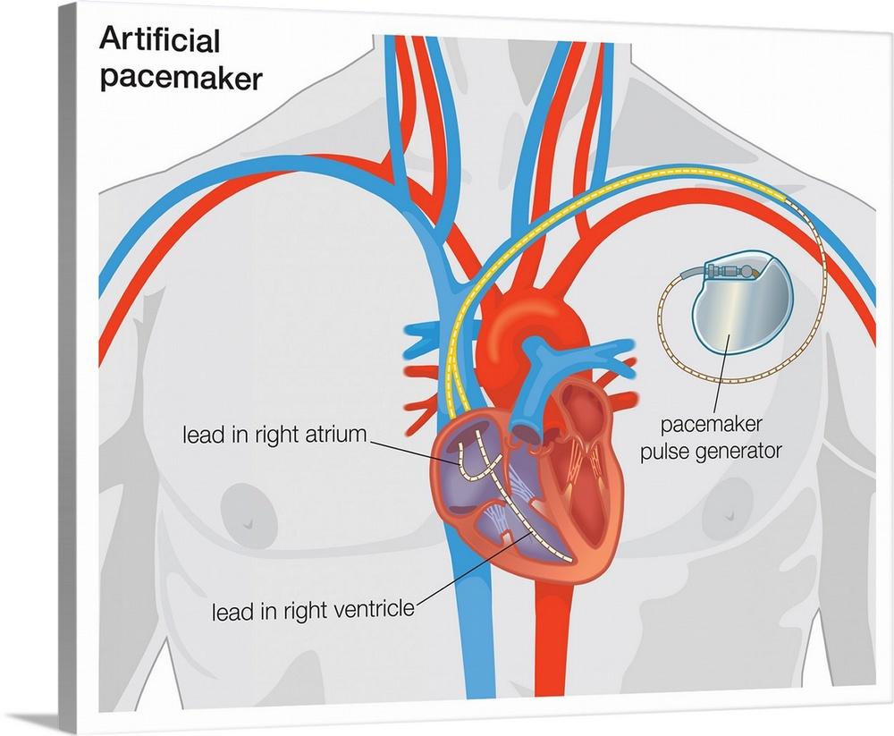 medium resolution of diagram of normal heart valve compared to artificial heart valve wall art