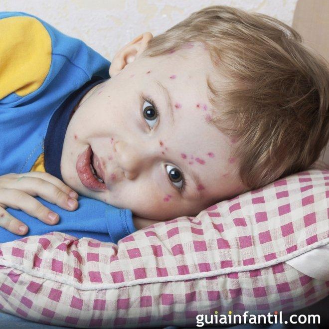 Varicela Enfermedades infantiles comunes