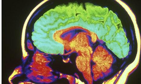 Brain - computer image
