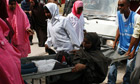 A woman injured in Mogadishu, Somalia