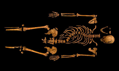 The complete skeleton showing the curve of the spine of Richard III