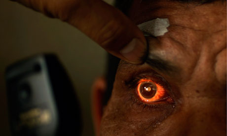 Man having his eye examined