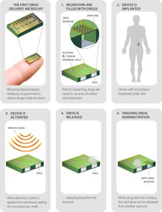 Control de la natalidad a distancia ... ¿Cómo funciona el micro chip de dispensación.