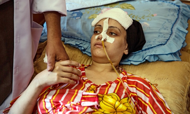Now lying in Shifa hospital, Mayasra Abu Madi 24 was pregnant when her home was hit.