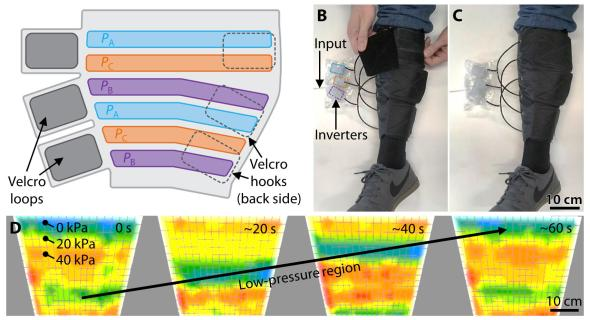 A soft robotic leg sleeve helps pump fluid up the lower leg