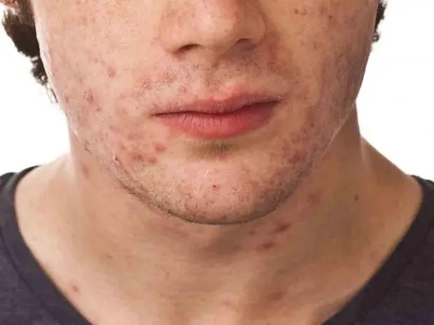 Adult Acne Causes Myths And Treatments The Independent