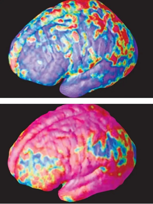 The brain of a person shortly after diagnosis with schizophrenia (top) showing it relatively unscathed. Five years later, there is substantial loss of grey matter (above). Damage starts in the outer regions of the brain and spreads to all parts over the y
