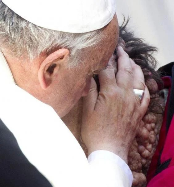 Image result for pope francis, sick