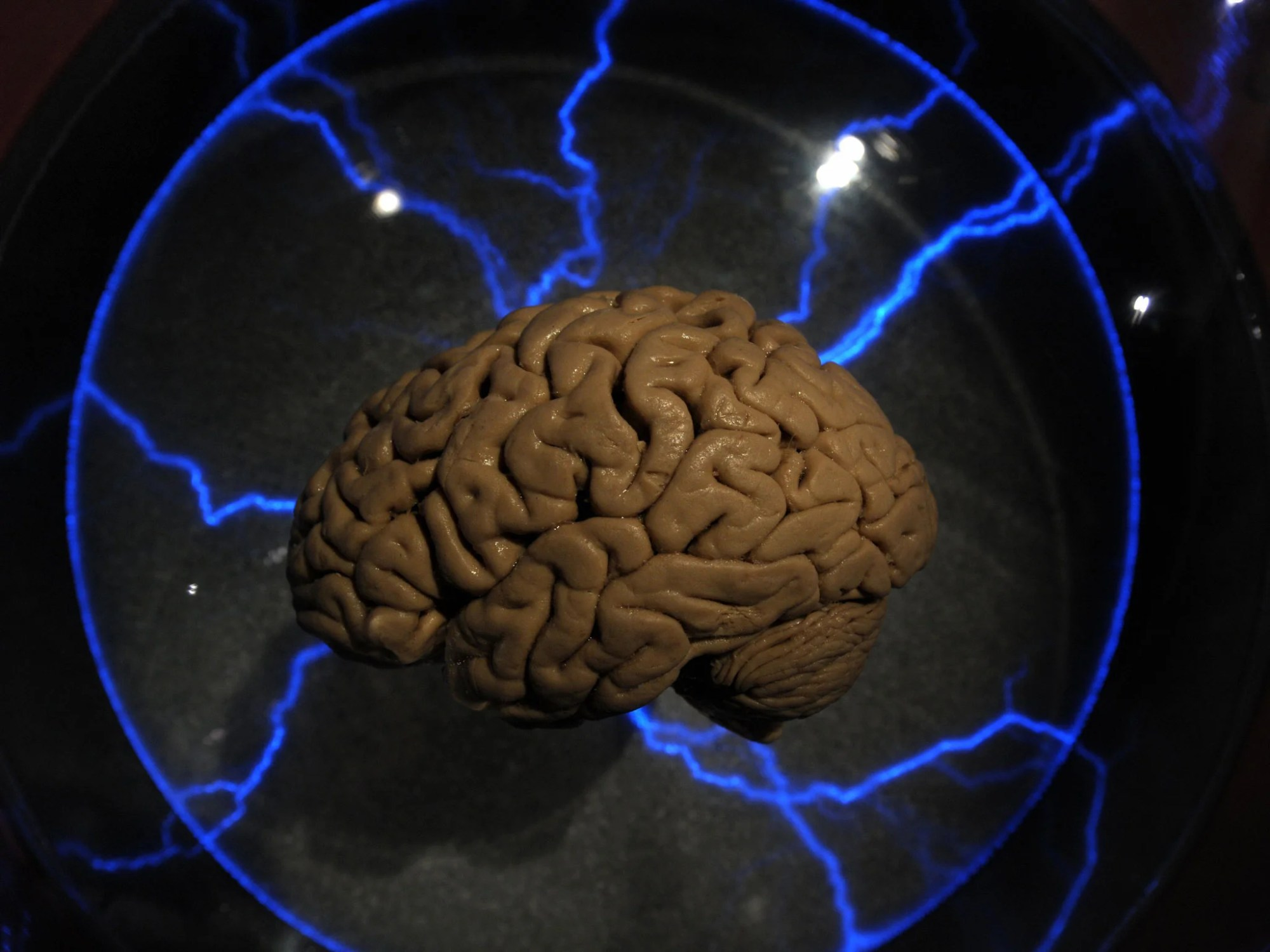 hight resolution of brain treats rejection like physical pain say scientists