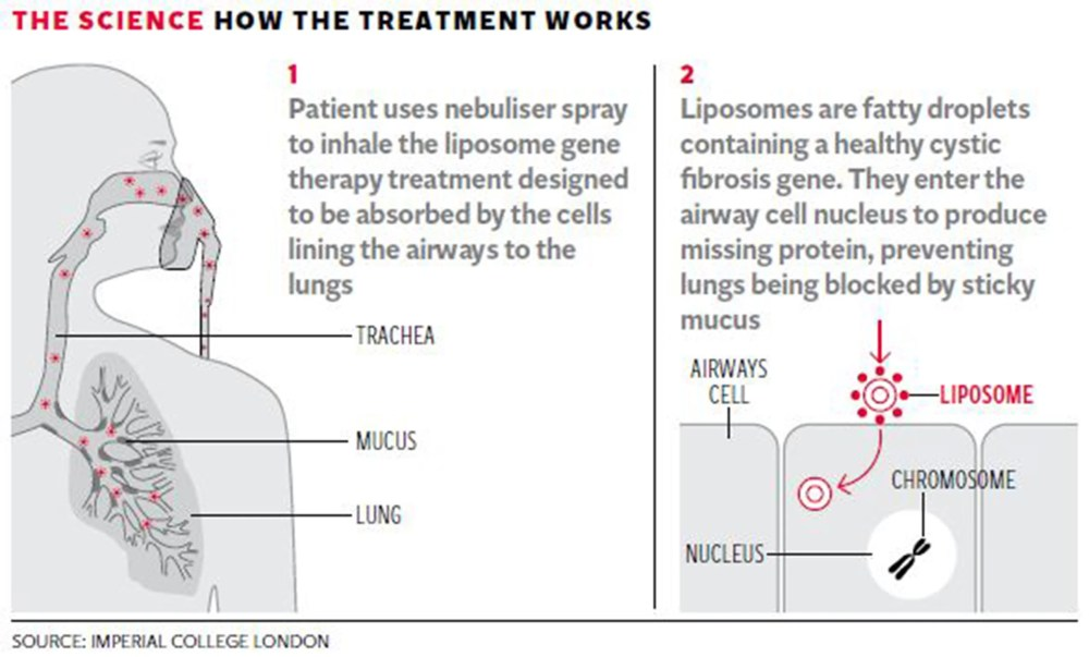 medium resolution of  patients who received the gene therapy showed a significant if modest benefit in tests of lung function compared with the placebo group there were no