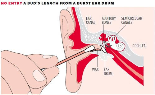 small resolution of cotton bud in ear why can t we resist the temptation despite the warnings