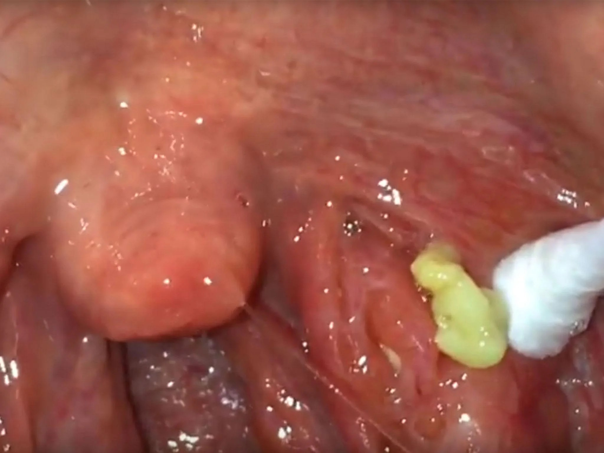 White Tonsils Pieces