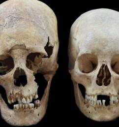 deformed skulls from dark age site show women were pioneers of europe not just men [ 2500 x 1875 Pixel ]