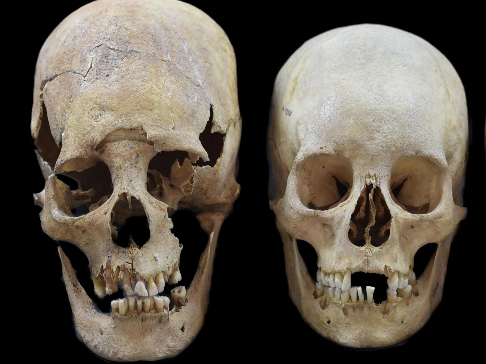 hight resolution of deformed skulls from dark age site show women were pioneers of europe not just men