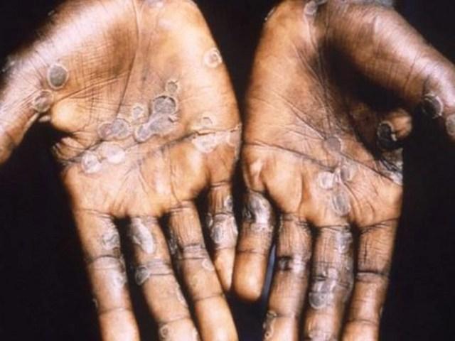 Image result for monkeypox