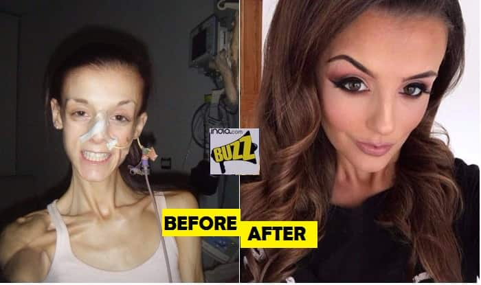 see before after pictures