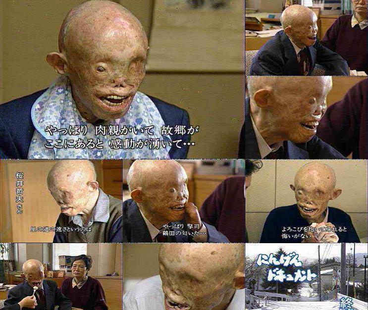 hiroshima-bomb-victim