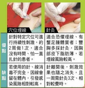 中醫師解讀:埋線減肥法必備常識(圖)