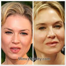 Close up of 2 Renee Zellweger face shots in lookism Before & After sc.com