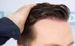 Cấy tóc là phương pháp dành cho những ai bị rụng tóc di truyền