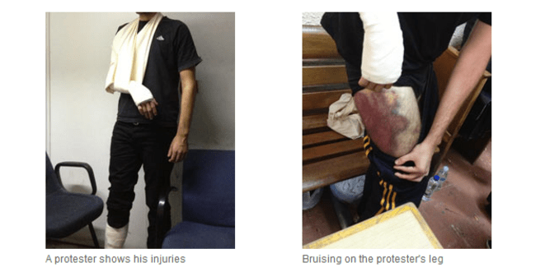 Photos de manifestants torturés par la police.