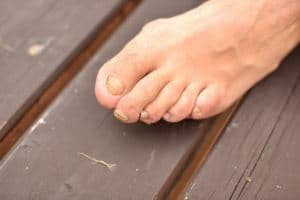 Help I have yellow toenails  NiceFeetnet