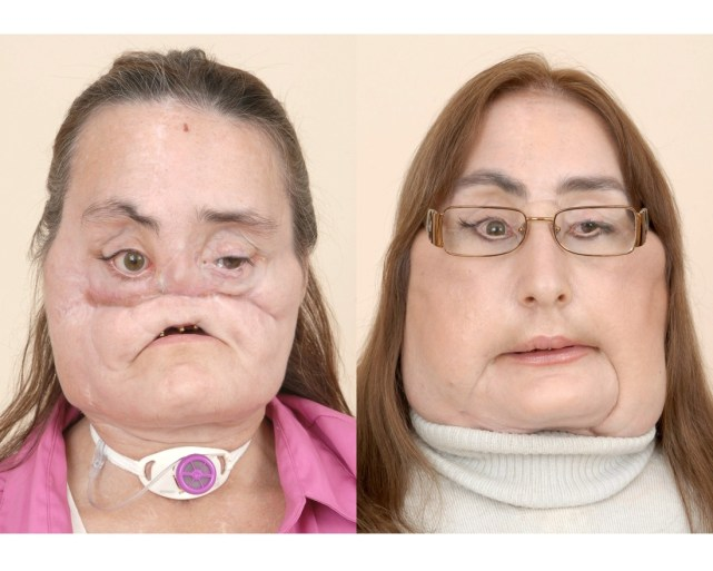 Woman who received the first facial transplant died: