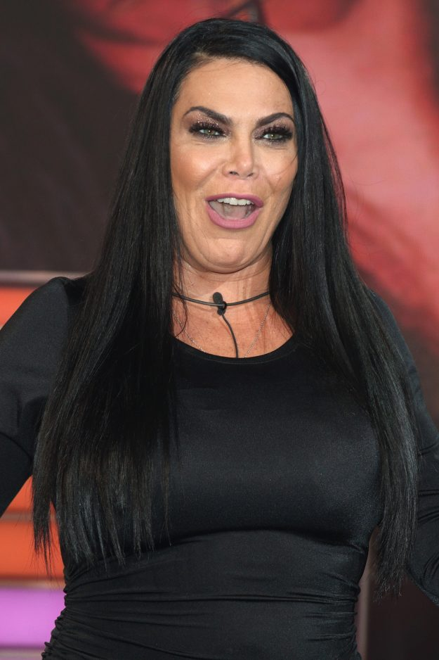 Did Look What Renee Surgery Plastic Graziano