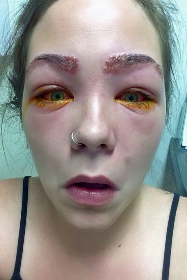 The Terrifying Result Of This Girls Diy Eyebrow Tint Will Make You