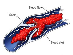 thrombosis   Olive Oil Times