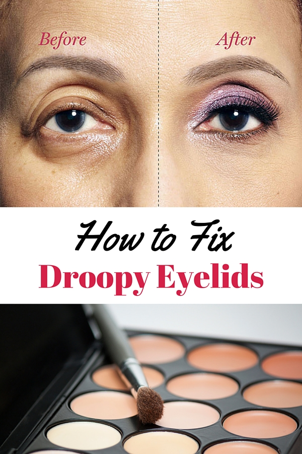 How To Fix Droopy Lids Correct