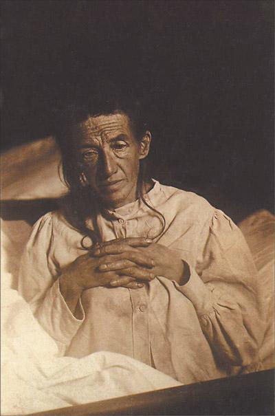 Auguste Deter, az első Alzheimer-kórral diagnosztizált beteg 1902-ben