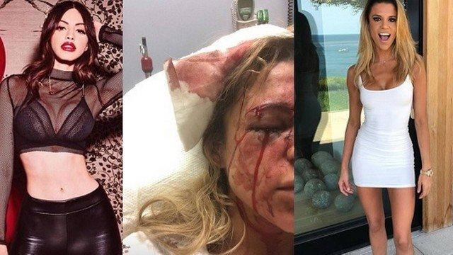 Duda Castro teria agredido modelo apontada como namorada do cantor (Foto: Reprodução)