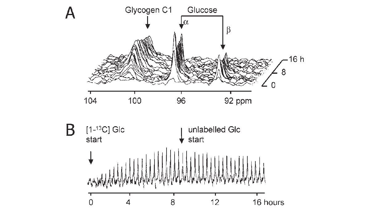Brain glycogen re-awakened - The Physiological Society