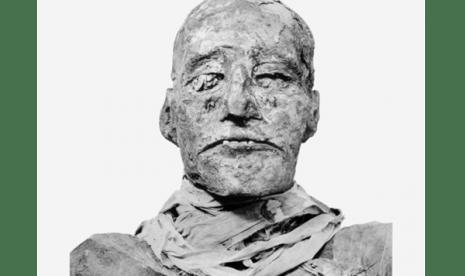 Peneliti Berhasil Ungkap Misteri Kematian Raja Mesir Kuno