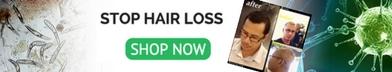 hair loss demodex mite treatment humans