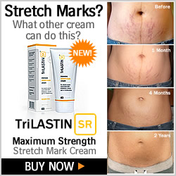 Best Creams for Stretch Marks