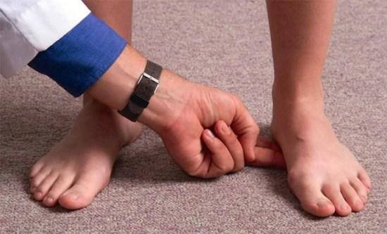 Foot Arch Examination
