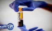 قائمة بأخطر أنواع البكتيريا التى تقضي على 10 ملايين شخص سنويا