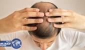 أهم العلاجات للصلع عند الرجال