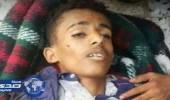 وزارة الإعلام اليمنية تصف مجزرة الصحفيين في تعز بجريمة الحرب