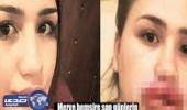 بالصور.. عملية تجميل لفتاة تركية تودي باستئصال الشفتين