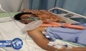 أطباء مستشفى عسير ينهون معاناة مواطن بعملية جراحية استمرت 9 ساعات