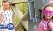 بالفيديو.. مرض غريب يصيب طفلة أمريكية في جلدها