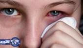 إذا ظهرت هذه العلامات على عينيك.. استشيري الطبيب فورا