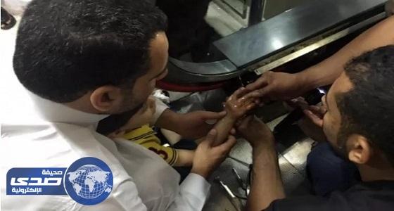 مدني المدينة يحرر يد طفل من سلم كهربائي