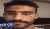 بالصور.. إصابة مهاجم الزمالك المصري في حادث سيارة