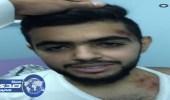 بالفيديو والصور.. لبؤة تهاجم مواطنا في الباحة