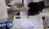 إصابة أول حالة بفيروس زيكا عبر الاتصال الجنسي في فلوريدا