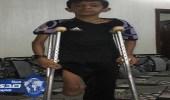 بالفيديو.. صحة المدينة: الطبيب المتسبب في بتر قدم طفل لم يهرب